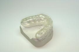 Schienentherapie, Zahnmedizin, Kiefergelenk