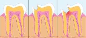 Zahnnerv, Zahnbehandlung, Zähne