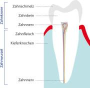 Zahnmodell, Zahnerkrankungen, Zahn