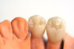 Zahnprothetik, Zahnersatz, Zahnkrone